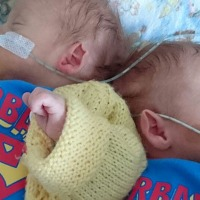 Finding the positive in prematurity
